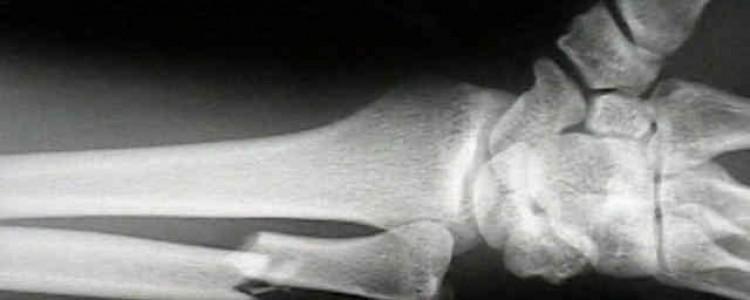 Una fèrula impresa en 3D per curar ossos trencats permet dir adéu al guix